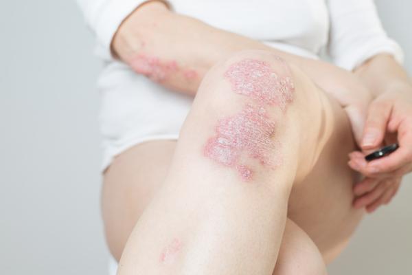 Cuánto dura un brote de psoriasis