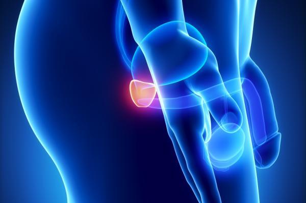 Por qué me duele el pene cuando orino - Ardor al orinar por prostatitis