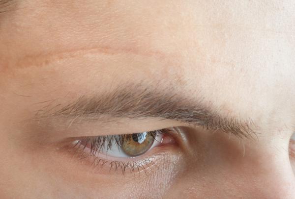 Cómo eliminar cicatrices en la cara - ¿Qué es y cómo se forma una cicatriz?