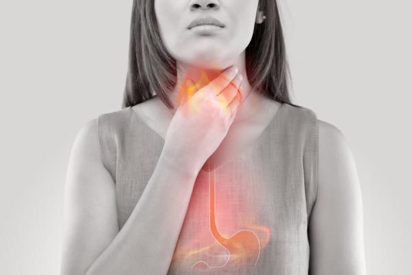 Acidez en la garganta: causas, tratamiento y remedios caseros