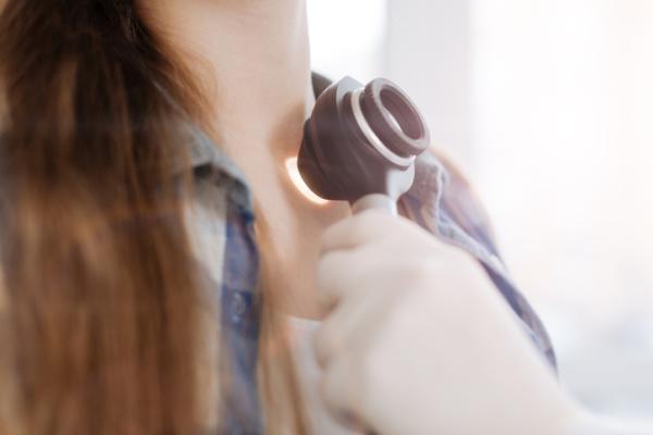 Acrocordones: qué son, causas y cómo eliminarlos - Cómo eliminar los acrocordones: tratamiento médico