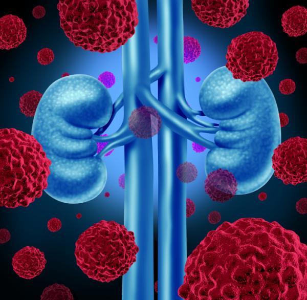 Sepsis urinaria: síntomas y tratamiento - Complicaciones de una infección urinaria