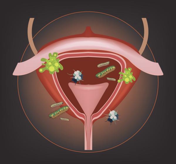 Sepsis urinaria: síntomas y tratamiento