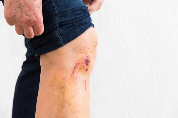 Cómo curar un golpe en la rodilla