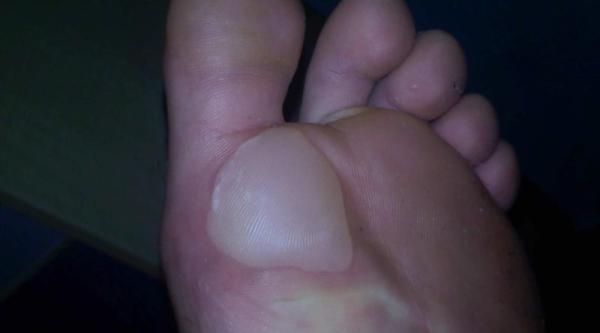 Ampollas en los pies por quimioterapia: grados, tratamiento y prevención - Eritrodisestesia palmoplantar: grados y síntomas