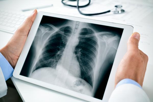 Dolor en el centro del pecho: causas y tratamientos - Dolor en el centro del pecho: diagnóstico