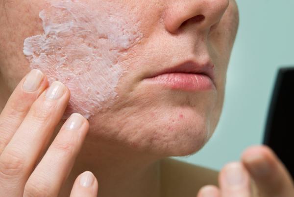 Acné quístico: causas, tratamiento y remedios naturales - Tratamiento del acné quístico