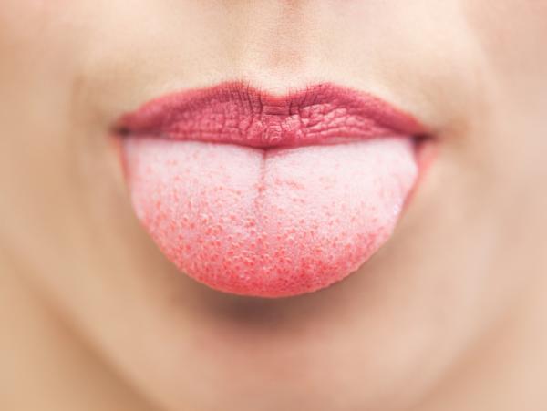 Lengua blanca: causas y tratamientos