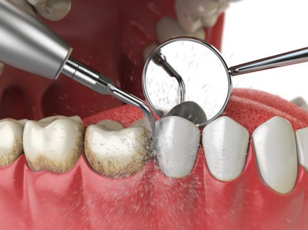 Cuidados después de una limpieza dental - Pasos para una buena limpieza dental
