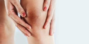 Manchas marrones en las piernas: causas y tratamiento