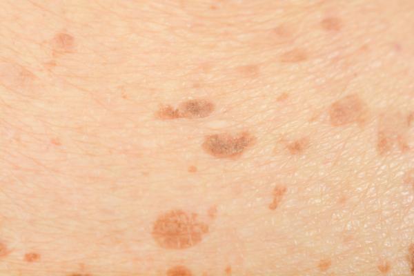 Manchas marrones en las piernas: causas y tratamiento - Manchas seniles