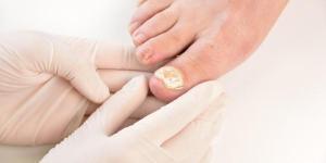 Por qué tengo la uña del pie blanca