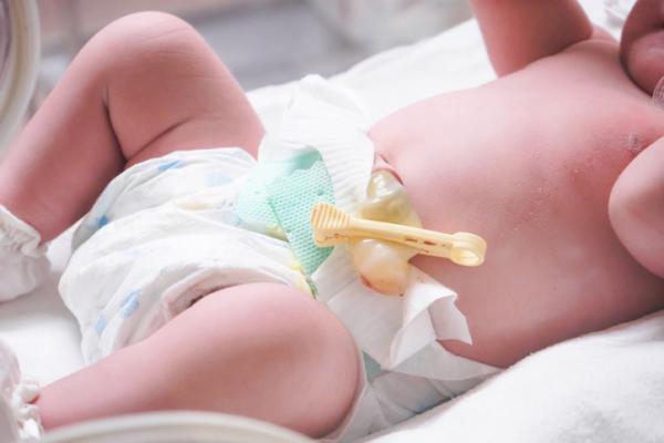 Infección en el ombligo: causas y tratamiento - Infección en el ombligo del bebé