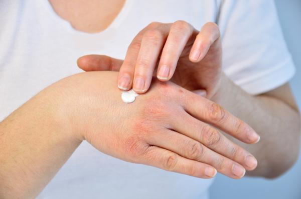 Por qué tengo los nudillos rojos - Artritis psoriásica