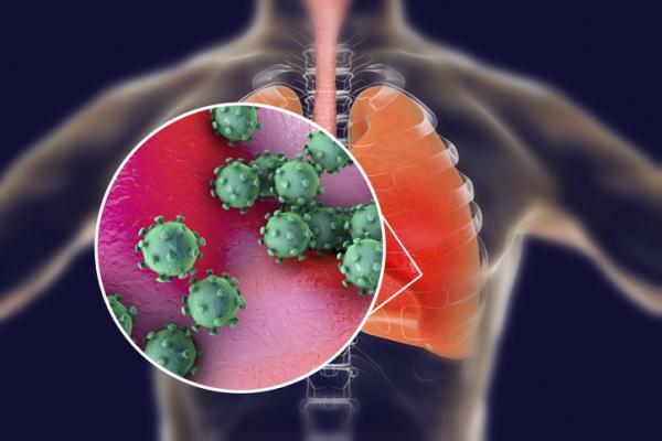 Cómo se contagia el coronavirus y cómo prevenirlo