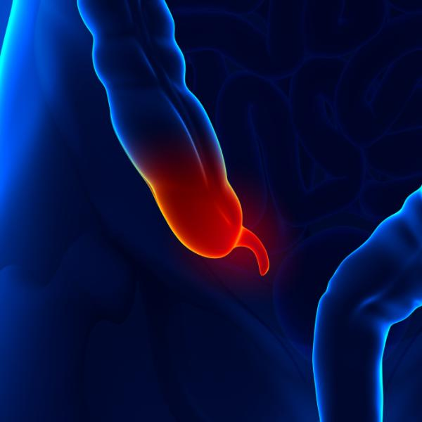Hemorroides externas trombosadas: causas, síntomas, tratamiento y duración