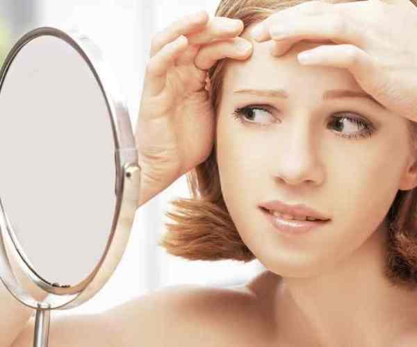 Beneficios del vinagre de manzana para la piel - Vinagre de manzana para el acné