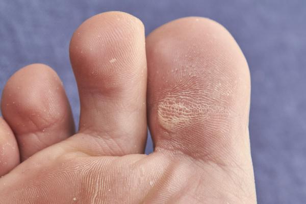 Diferencias entre callo y clavo en el pie