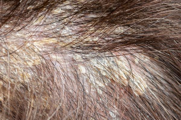 Descamación del cuero cabelludo: causas, tratamiento y remedios caseros