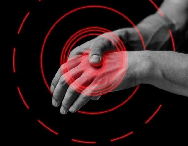 Por qué tengo los dedos torcidos - Artrosis de mano: síntomas