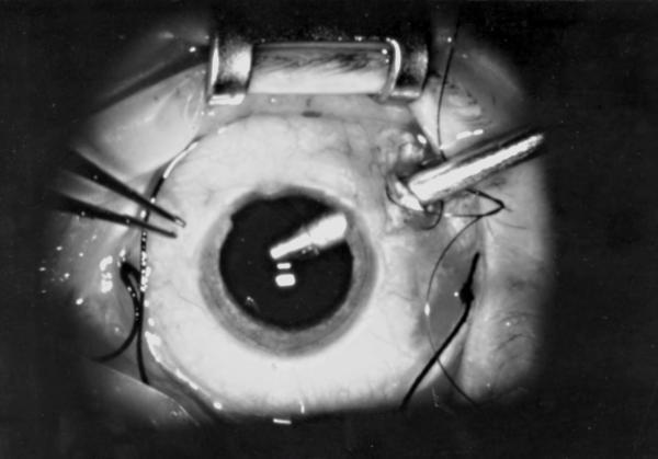 Cuidados después de una vitrectomía - Qué es una vitrectomía y para qué sirve
