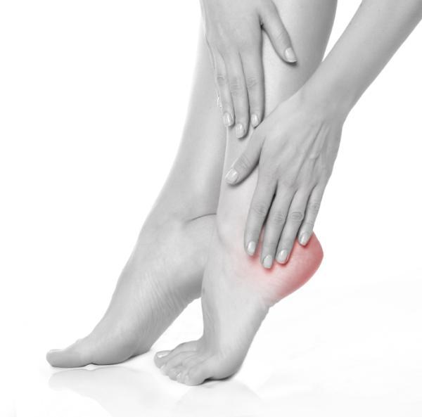 Espolón calcáneo: causas y tratamiento - Síntomas del espolón calcáneo