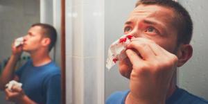 Por qué sale sangre por la nariz de repente