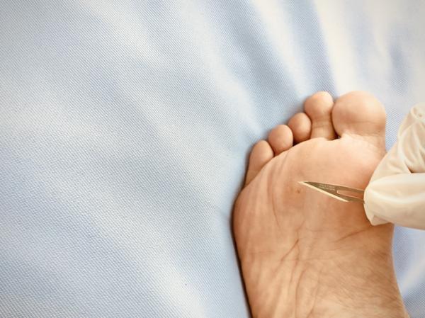 Heridas entre los dedos de los pies: por qué salen y cómo curarlas - Verrugas plantares