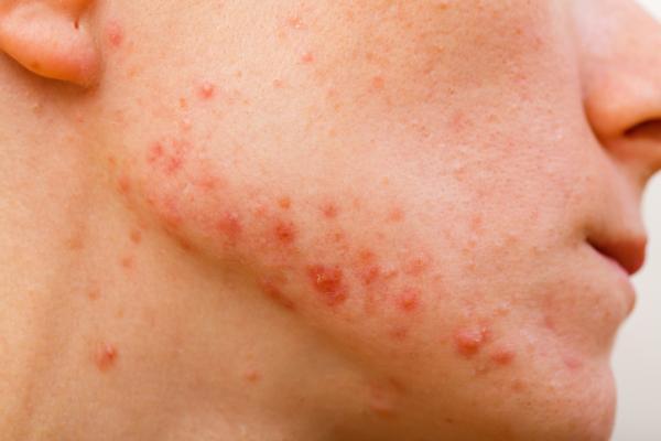 Granos en el cuello que pican: causas y tratamiento - Causas de los granos que pican en el cuello