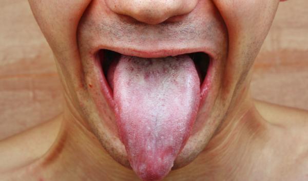 Bolita en la boca: causas y soluciones - Bolas blancas en la boca