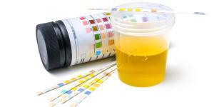 Proteínas en la orina: causas y consecuencias