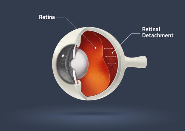 Desprendimiento de retina: síntomas, causas y tratamiento