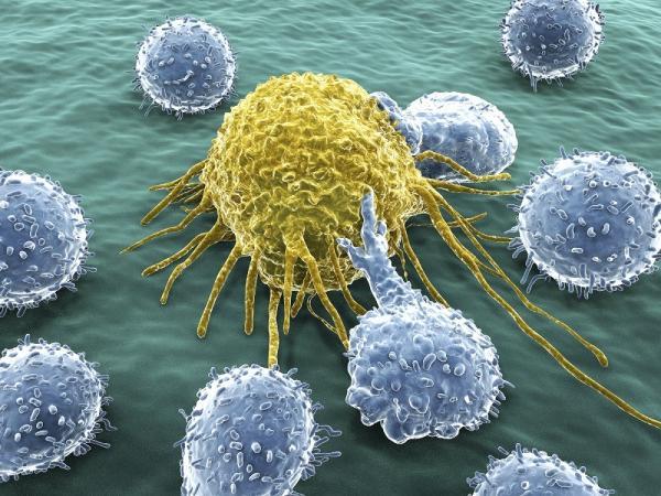 Síntomas de la leucemia - Tipos de leucemia