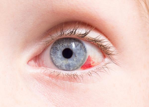Por qué tengo el ojo rojo
