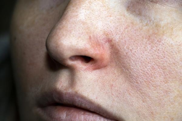 Sensación de calor en el cuerpo: causas y tratamiento - Trastornos de la piel como la rosácea