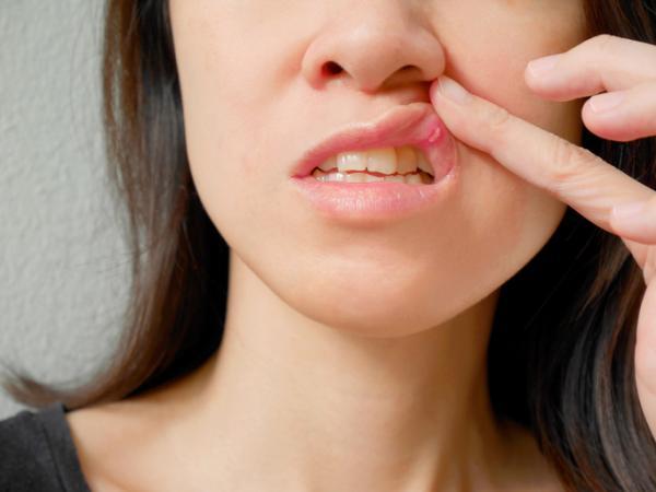 Úlceras bucales: causas y remedios naturales
