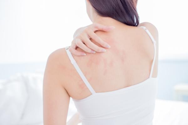 Ardor en el cuerpo por estrés: causas y tratamiento
