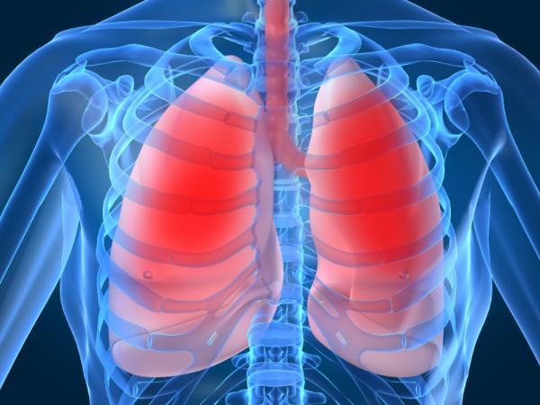 Fibrosis pulmonar: causas, síntomas y tratamiento