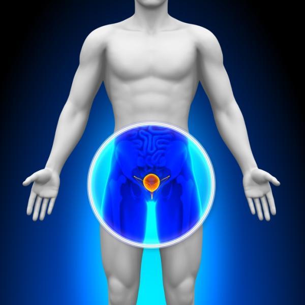 Cuándo se debe operar la próstata