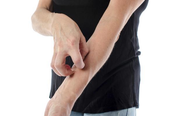 Por qué cuando sudo me pica la piel - Alergia al sudor, posible causa