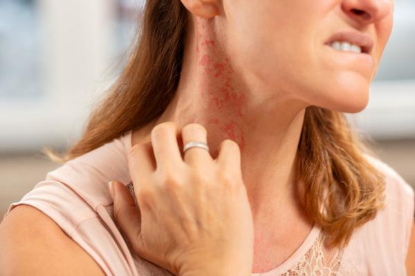 Manchas rojas en el cuello: por qué salen y cómo quitarlas