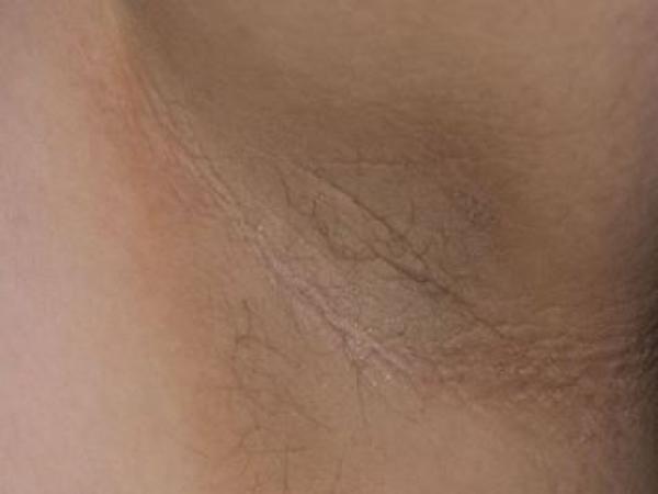 Manchas negras en el cuello: por qué salen y cómo quitarlas - Por qué salen las manchas negras en el cuello