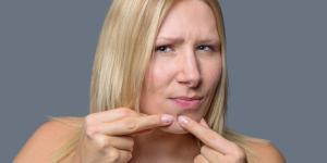 Granos en la barbilla: por qué salen y cómo quitarlos