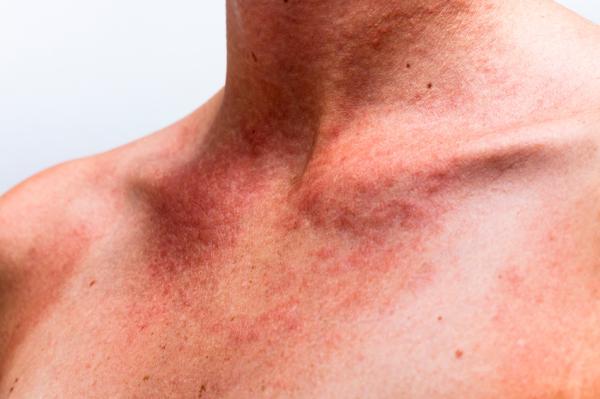 Dermatitis nerviosa: causas, síntomas, tratamiento y remedios caseros - Dermatitis nerviosa: síntomas