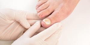 ¿Los hongos en las uñas duelen?