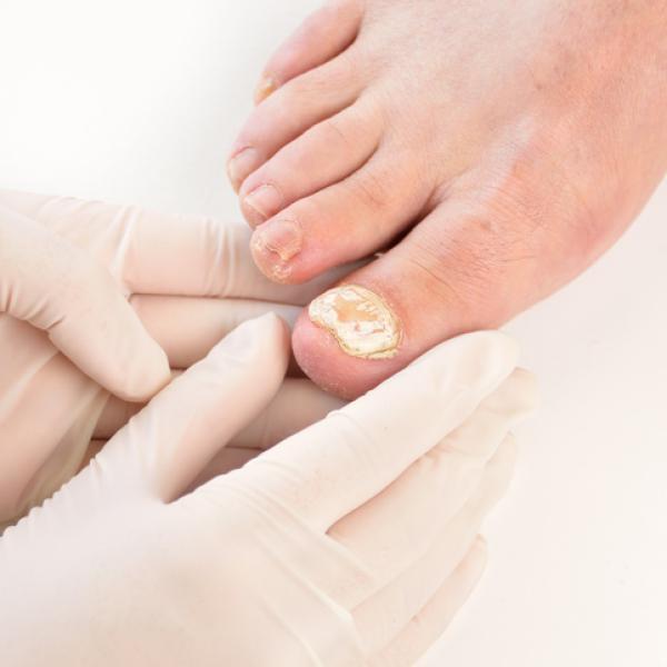 Los hongos en las uñas duelen? - descubre la respuesta