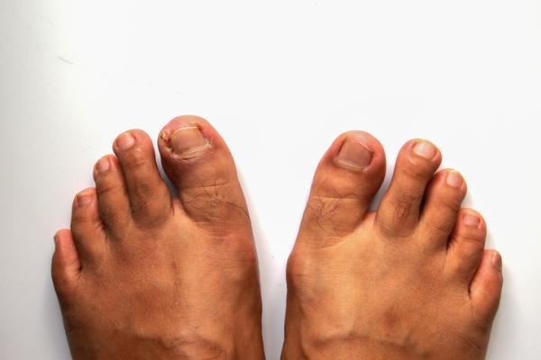 Cómo curar una uña encarnada del pie
