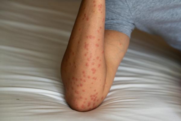 Sarpullido en los brazos: causas y tratamiento