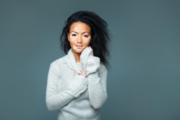 ¿El vitiligo es contagioso?