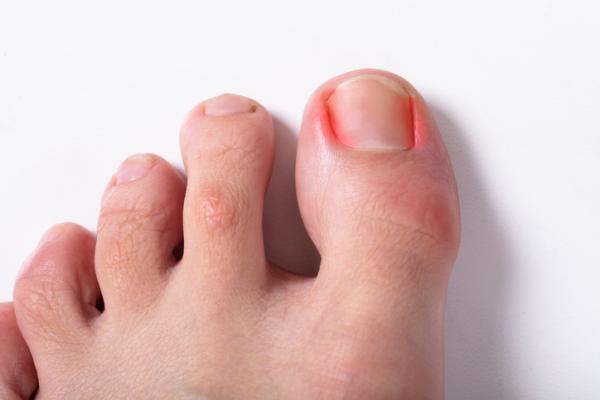 Cómo curar una infección en el dedo del pie - Causas de infección en el dedo del pie